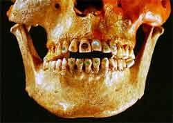 ornamento_dente